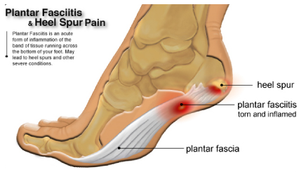 plantar-fasciitis_physiotherapy